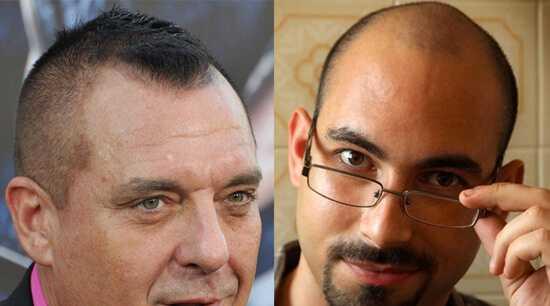 Стрижки для лысеющих мужчин на лбу – Причёски с залысинами на лбу мужские: лучшие идеи и рекомендации